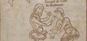 Středověká chirurgie