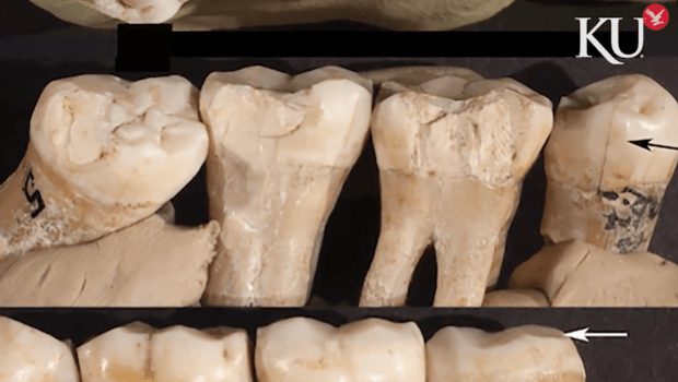 Zuby neandrtálce